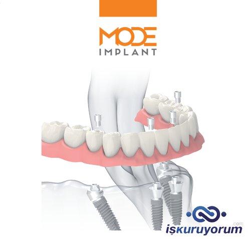 mode implant bayilik